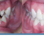 before and after teeth orthodontist Redding CA