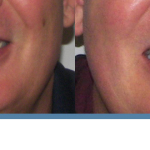 before and after schalo smiles northern california orthodontist