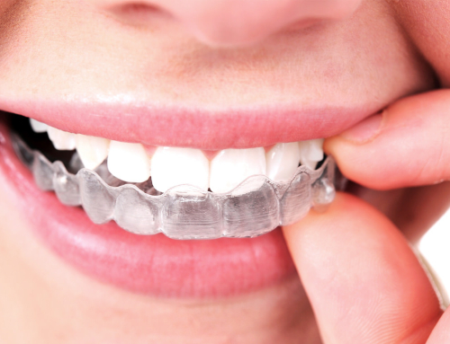 Moving During Invisalign Treatment: Tips from a Redding Orthodontist