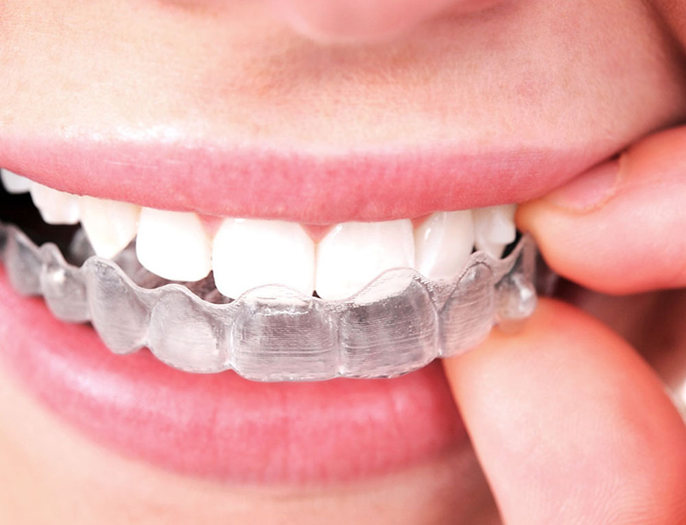 How to Take Care of Your Invisalign Aligners