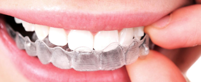 Woman holding Invisalign aligners up to her mouth