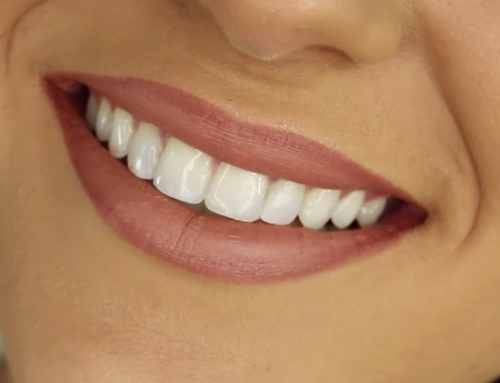4 Ways That Braces Improve Your Health