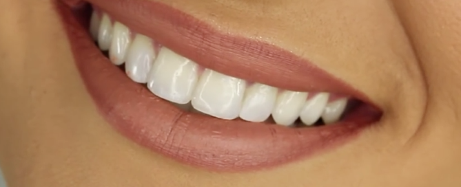 Tan-skinned woman with straight white teeth