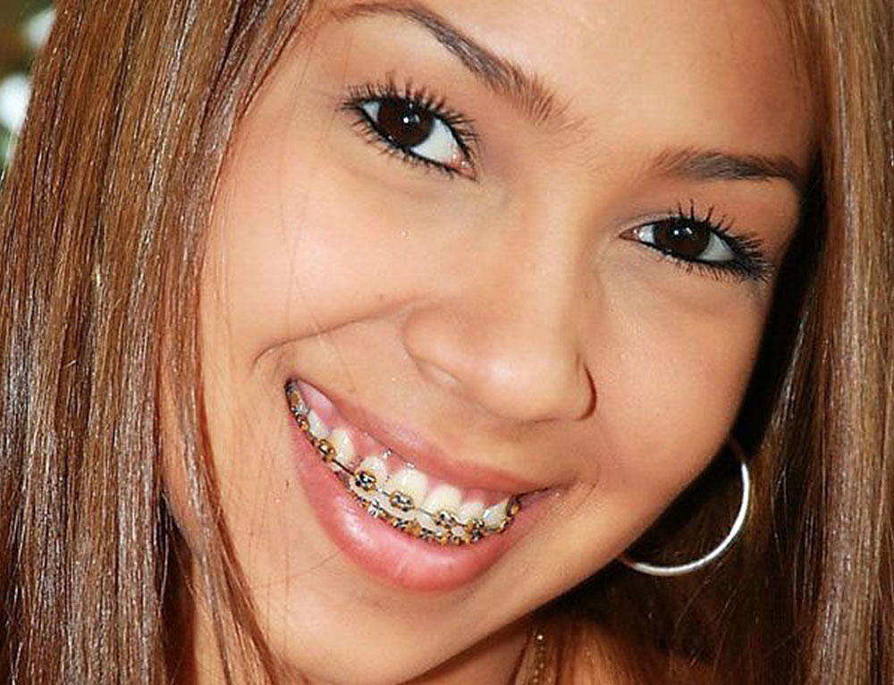 4 Types of Braces: Which is Right for You?