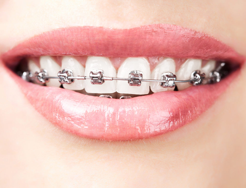 3 Main Reasons to Consider Getting Braces in Redding