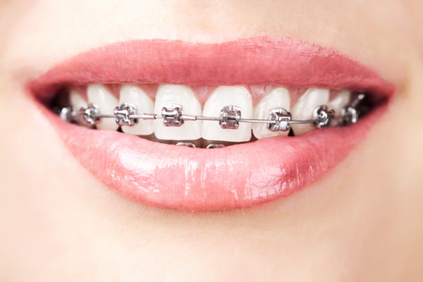 teeth with braces