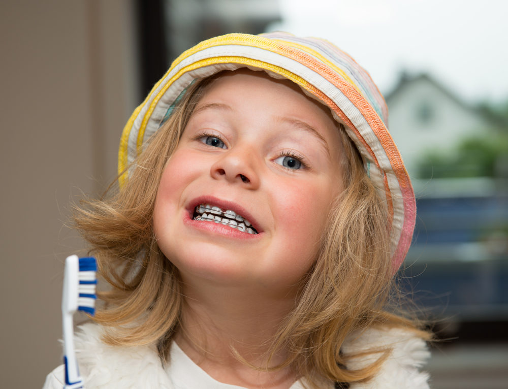 Why It's Important for Children to Get Braces
