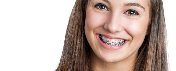 smiling teenage orthodontist patient