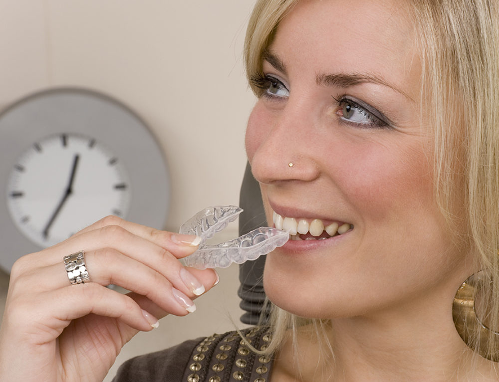 1-Week Invisalign Trays Make Treatment Even Easier for Patients