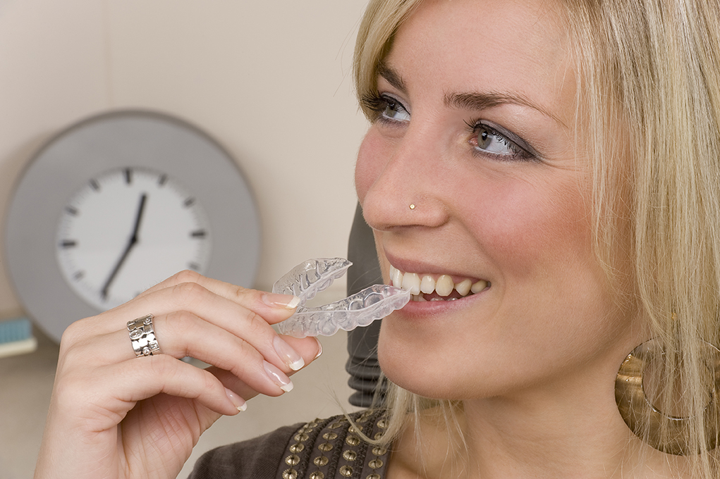 smiling woman inserts invisalign